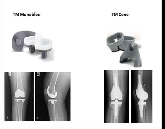 骨小梁金属的特点: 1、材质:钽金属(抑菌); 2、骨长入效果好; 3、孔隙率高达80,开孔率高达100%; 4、平均孔径440微米,单位平均550微米; 5、弹性模量3.1Gpa; 6、摩擦系数0.98; 7、小于或等于5毫米的术后间隙都能被填充; 8、16年以上的临床随访。 骨小梁金属对比松质骨(骨小梁金属拥有与松质骨极为相似的3D结构)